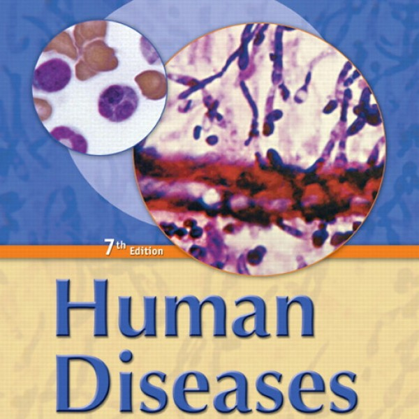 Test Bank for Human Diseases A Systemic Approach 7/E by Zelman