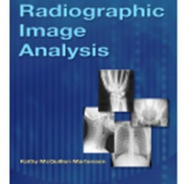 Test Bank for Radiographic Image Analysis 3/E by Martensen