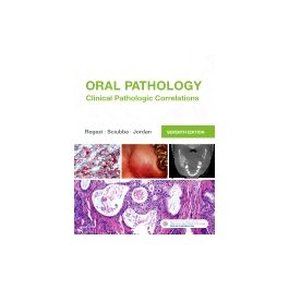 Test Bank for Oral Pathology 7th Edition by Regezi